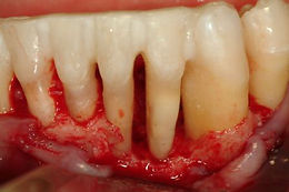 Bone Loss From Gum Disease