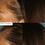 Thumbnail: Nutrafol Hair Supplements