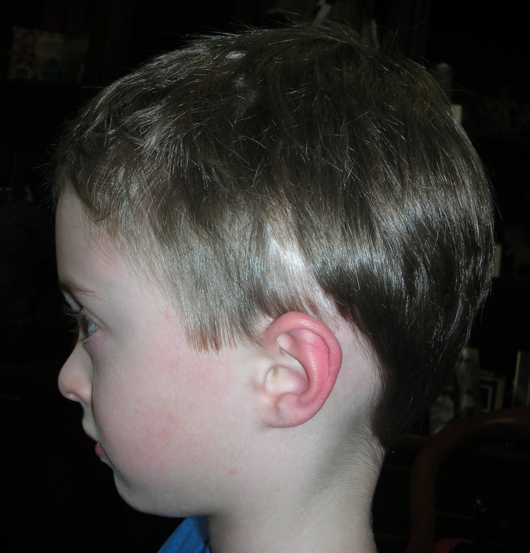 Scaphocephaly,6 years post-op.