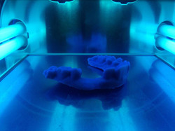 post traitement empreinte maxillaire