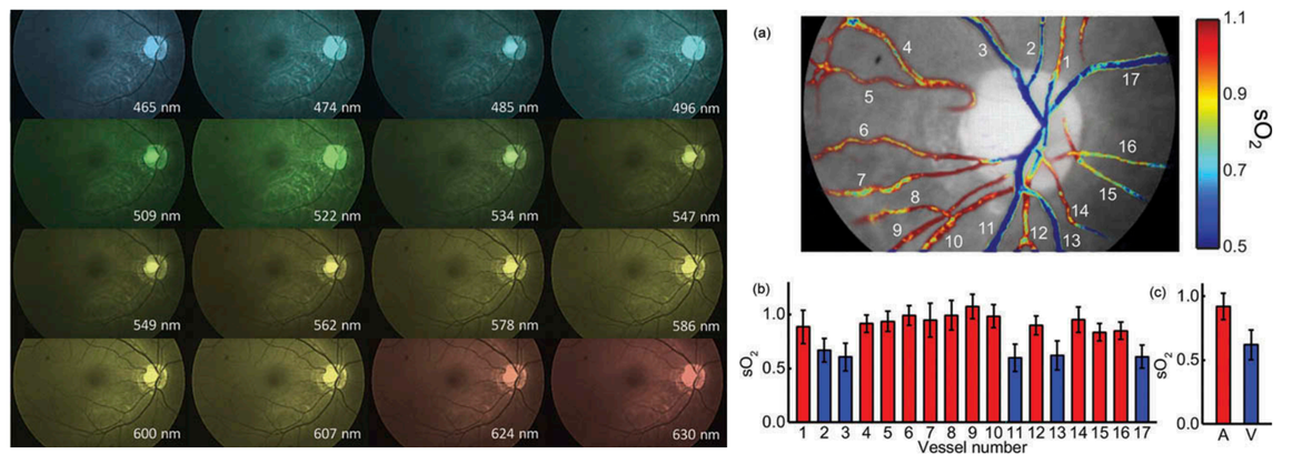 Oxygenation maps of the retina