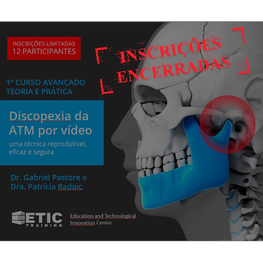 Discopexia da ATM por vídeo: uma técnica reprodutível, eficaz e segura