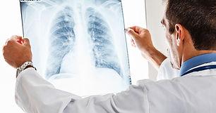 lung-cancer_scan-1.jpg