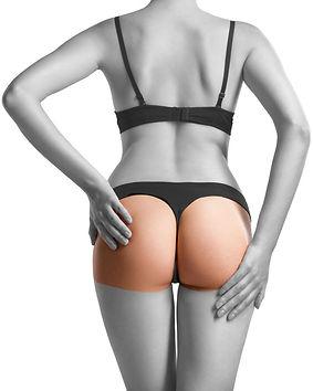 LL-hairremoval-buttocks-woman.jpg