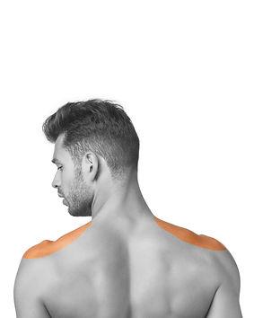 LL-hairremoval-shoulders-man.jpg