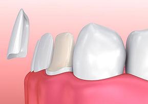 Porcelain Veneers – Philomath Dentist