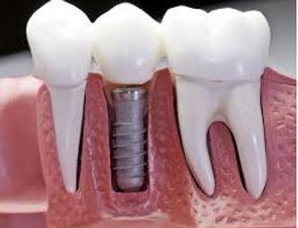 Dental Implants, Philomath Dentist