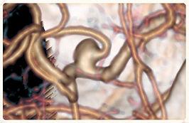 Aneurismi cerebrali, fistole arterovenose durali, MAV, angiomi cavernosi