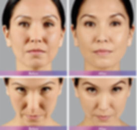 Juvederm before and after.jpeg