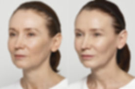 Restylane-Lyft-Carol-Before-and-After.jp