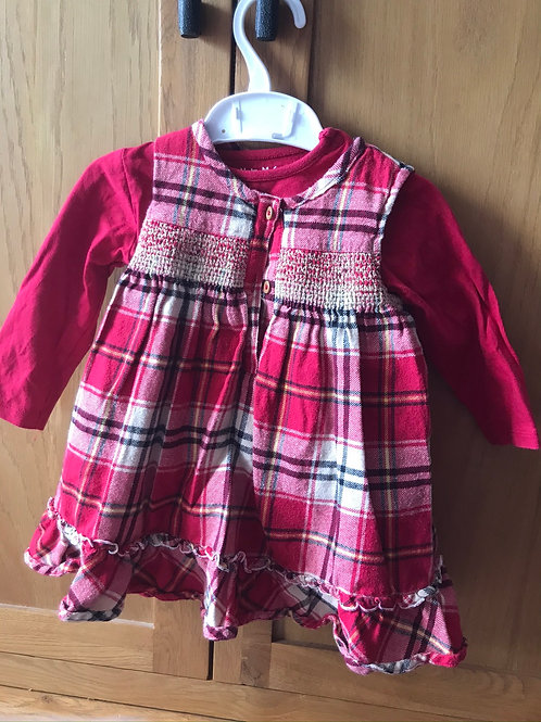 9-12 month dress and top