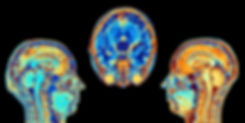 bipolar dsorder y dm2.jpg