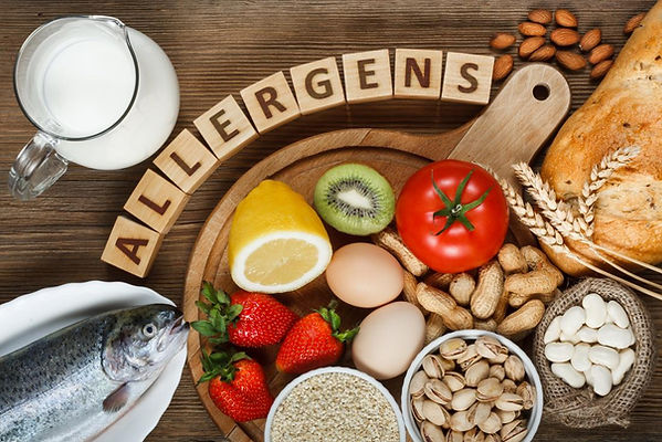 Top food allergy triggers