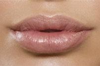 Kysse Lip Filler