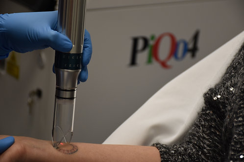 PiQo4 Tattoo Removal 3-for-price-of-2