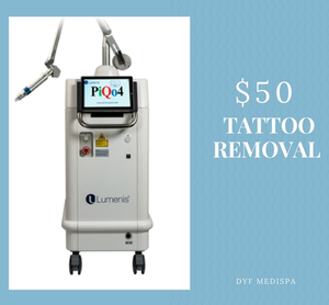 TATTOO REMOVAL EVENT 03-08-18 AT DRYOUNGFOREVER
