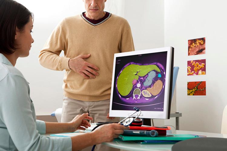Gordura no fígado. Médica avaliando exame do paciente.