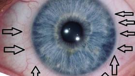 Alergia czynnik zewnętrzny i wewnętrzny