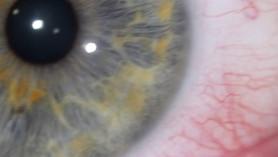 Alergie - czynniki zewnętrzne