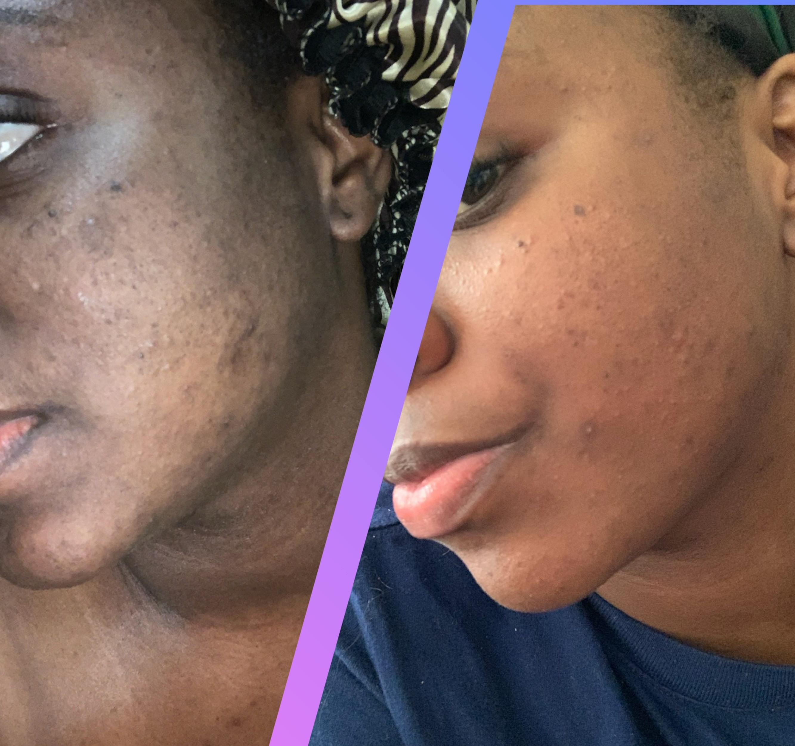 Clear-At-Last Acne Treatment Program