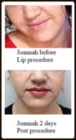 beautiful you lips permanent makeup