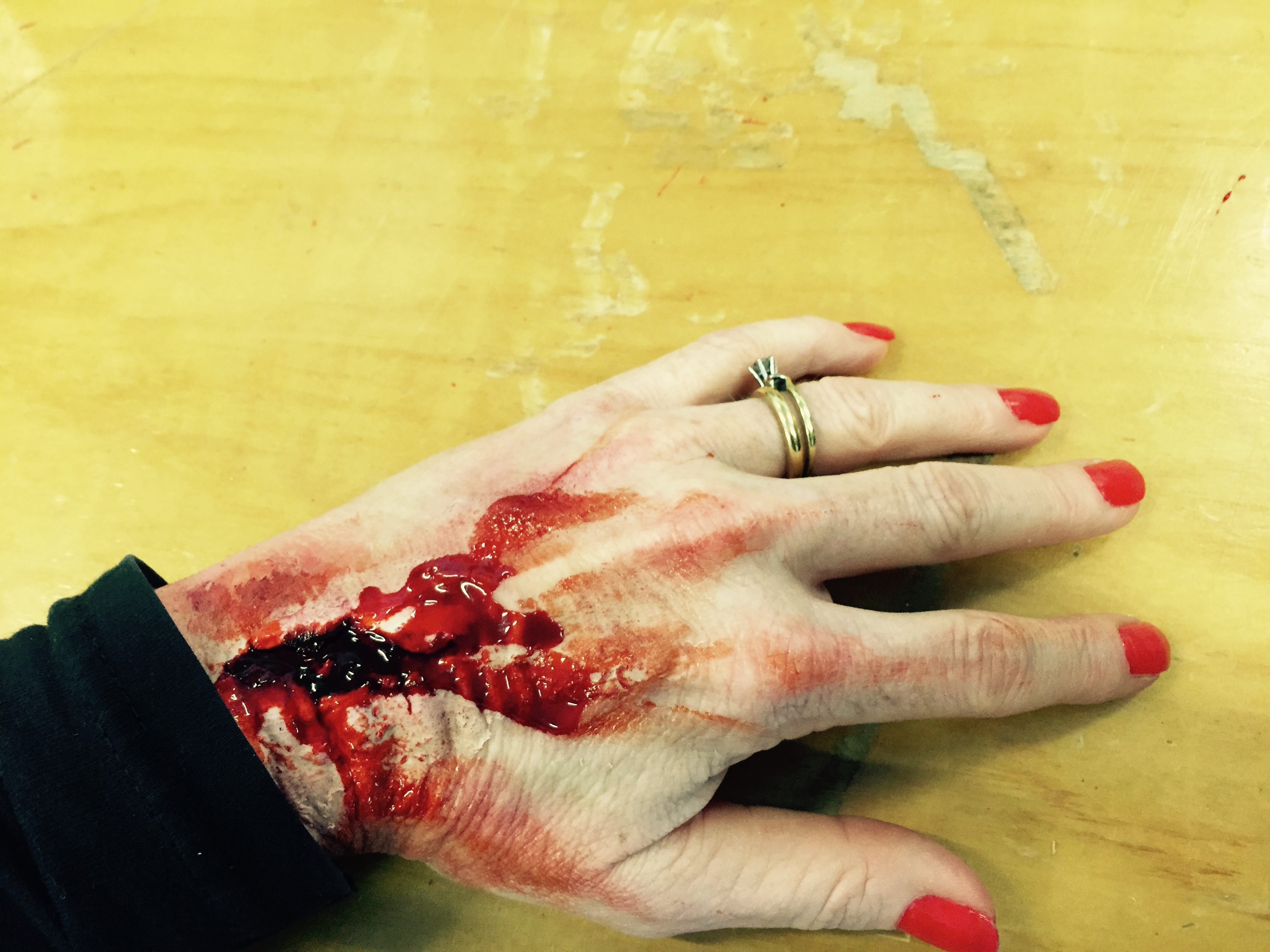 SFX Wounds