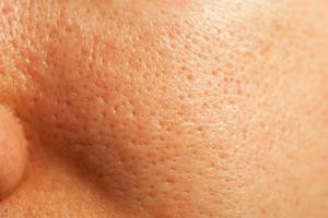 What's The Best Way To Shrink Pores?