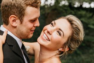 Pre-Wedding Skincare