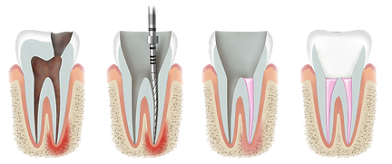 root canal treatmet