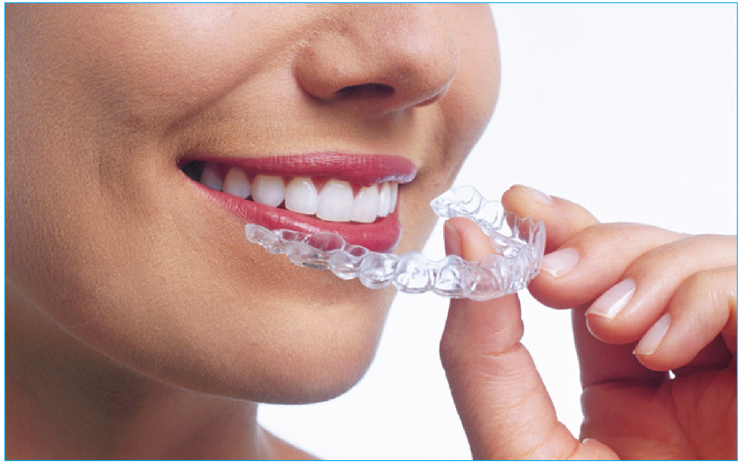 Clear Aligners (1)