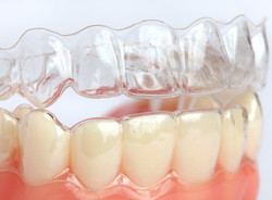 clear aligners2