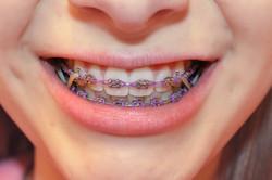braces 8
