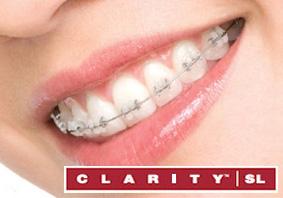 braces 5