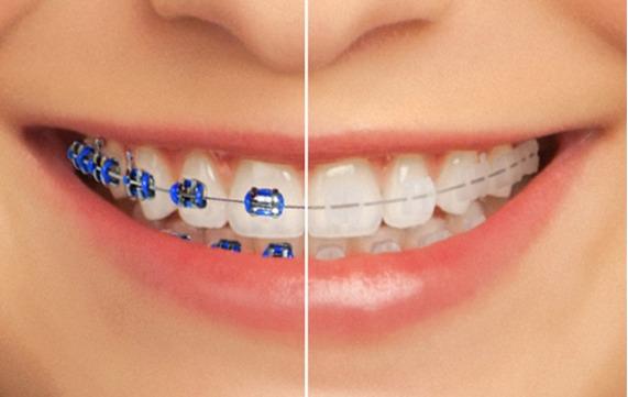 braces ceramic_edited