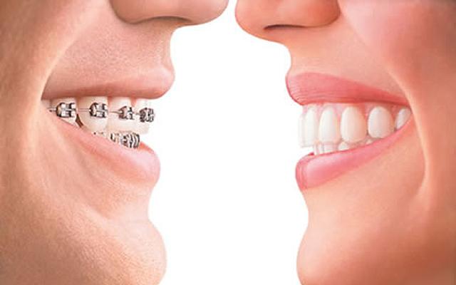 braces 7