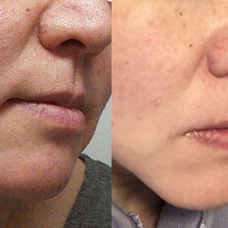 鼻の周りの大きな凸凹