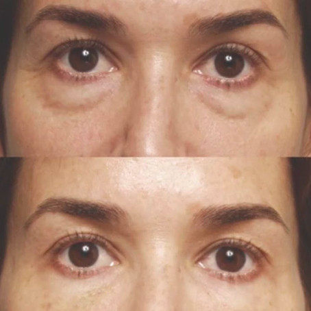 Everything You Need to Know About Under Eye Filler