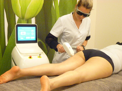 diode laser system:the golden standard for permanent hair removal