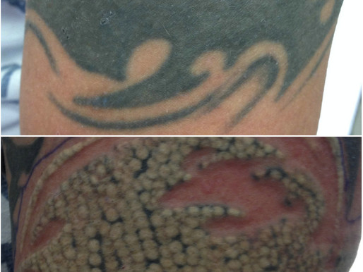tattoo and permanent makeup removal