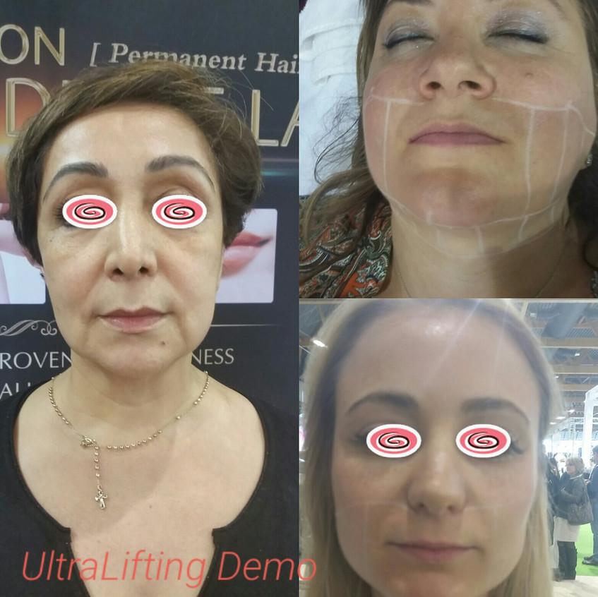ESTETIKA UltraLifting Demo