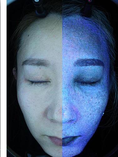 Lumière polarisée et lumière UV