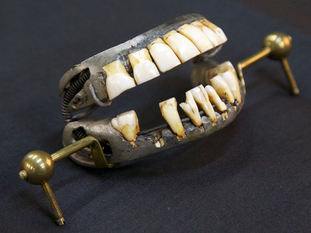 The Wonderful History of Dentures