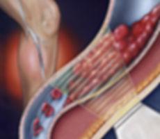 Trombose venosa profunda, Angiologia, Cirurgia Vascular