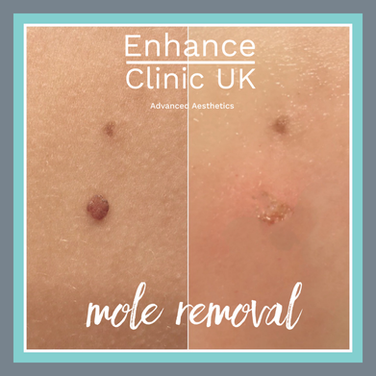 Mole and Skin Tag Removal
