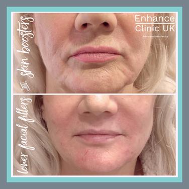 Lower Face Rejuvenation