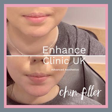 Chin Filler
