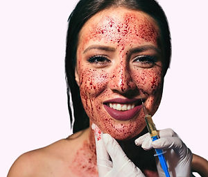Vampire Facial Microneedling Microchanneling Stem Cells Sacramento, CA