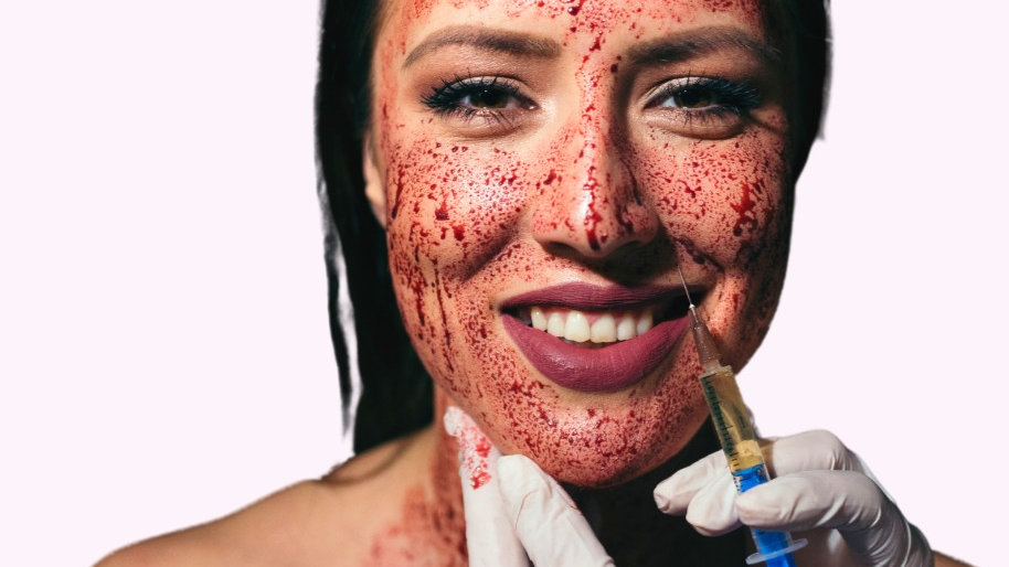 Vampire Facial with Stem Cells