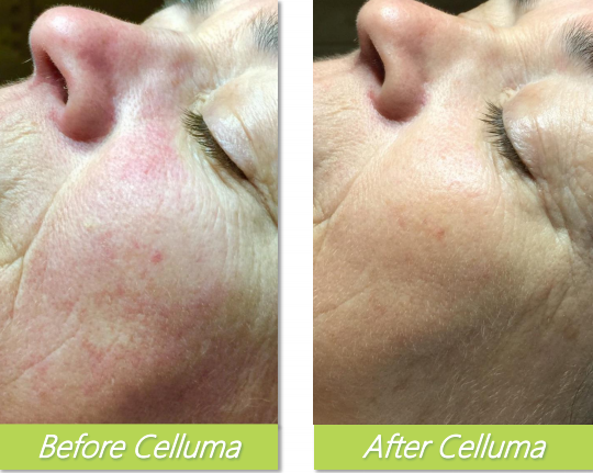 Celluma 5 - Bethel Day Spa
