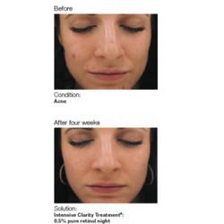 Acne-image5-bethel-day-spa-nail-salon